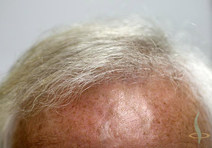 Saç kökü