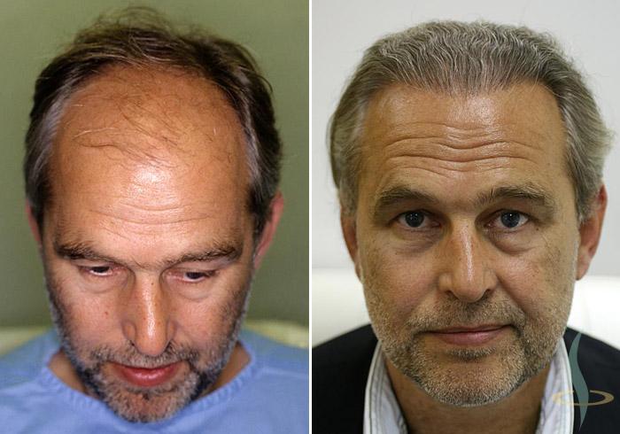 Sol: önce / sağ: üçünü operasyondan 8 ay sonra (toplam 2800 greftler)