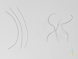 Body Hair Transplantation – a Revolution in Hair Transplantation?