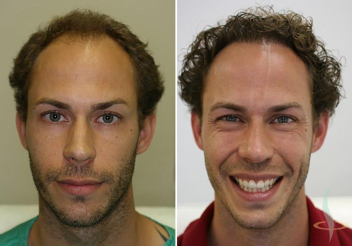 Sol: önce / sağ: 2. operasyondan sonra