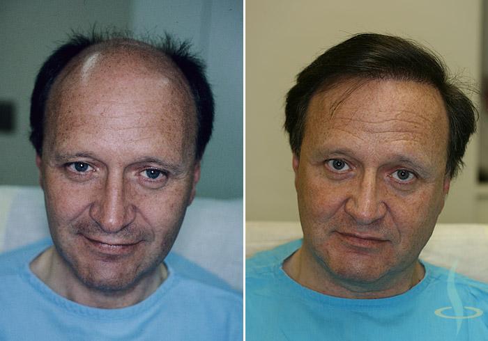 Sol: önce / sağ: üçuncü operasyondan sonra